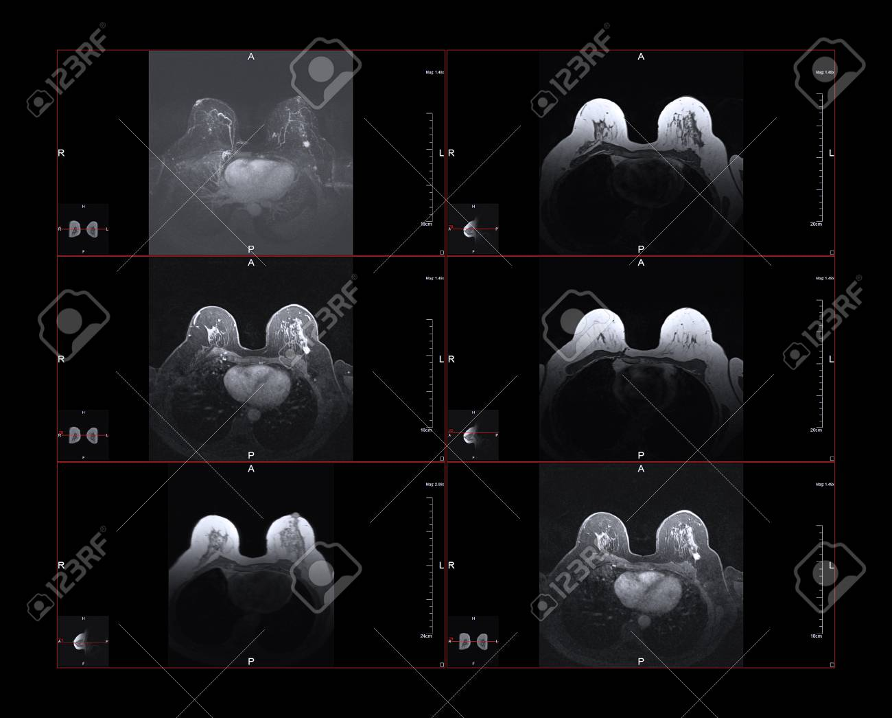 Breast magnetic resonance image, or MRI. The bright white dot in the larger images is Stage One cancer. The small images show the position within the body. - 89930854