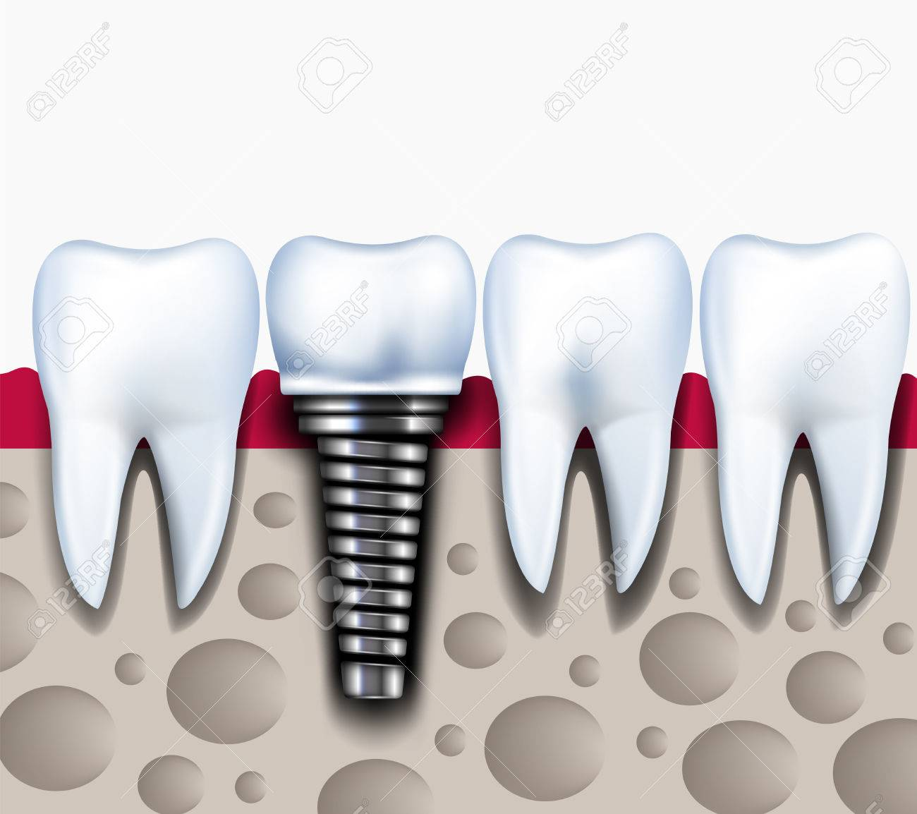 Anatomy Of Healthy Teeth And Dental Implant In Jaw Bone Healthy