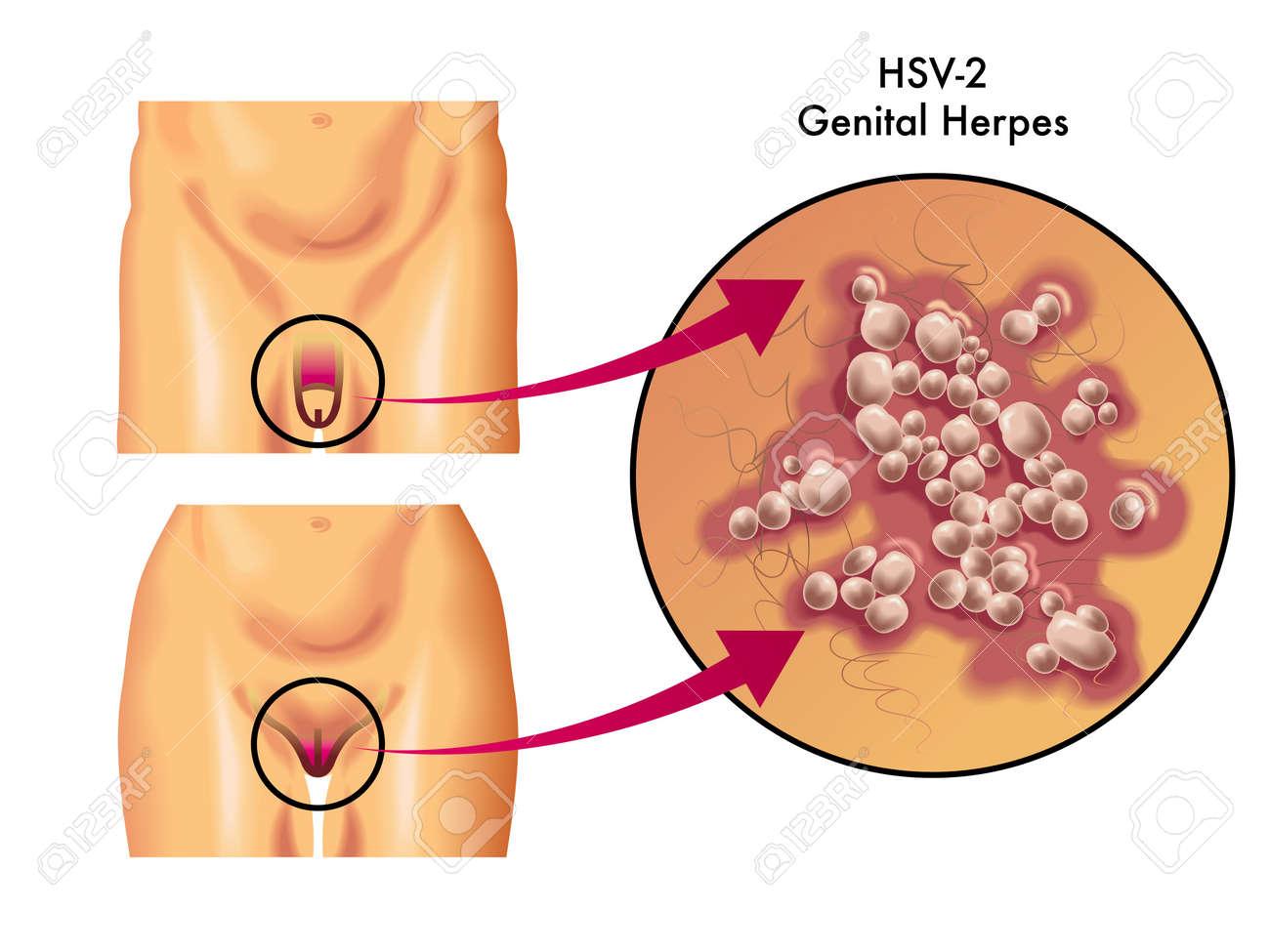 genital herpes Stock Vector - 14225603