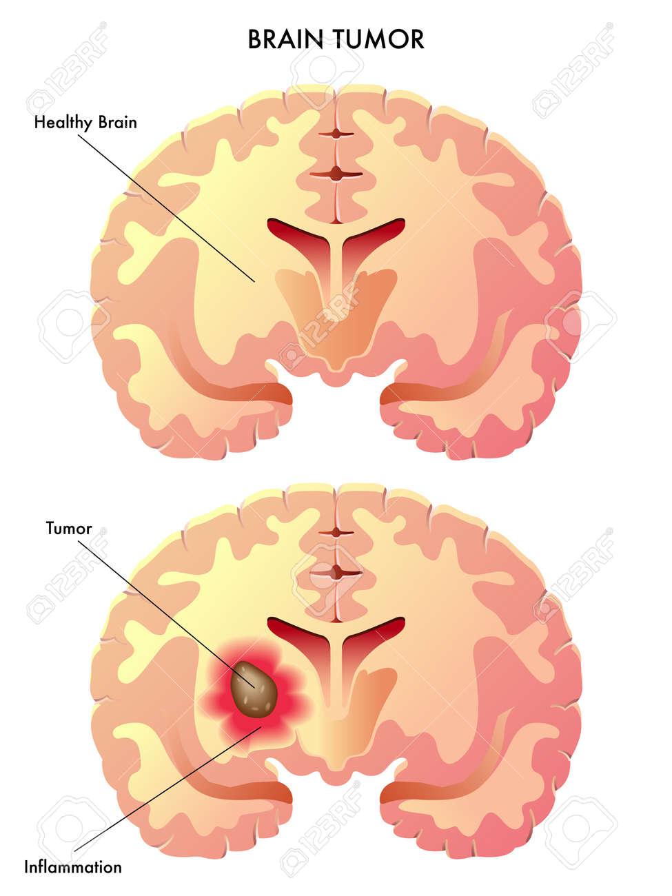 brain tumor Stock Vector - 15327346