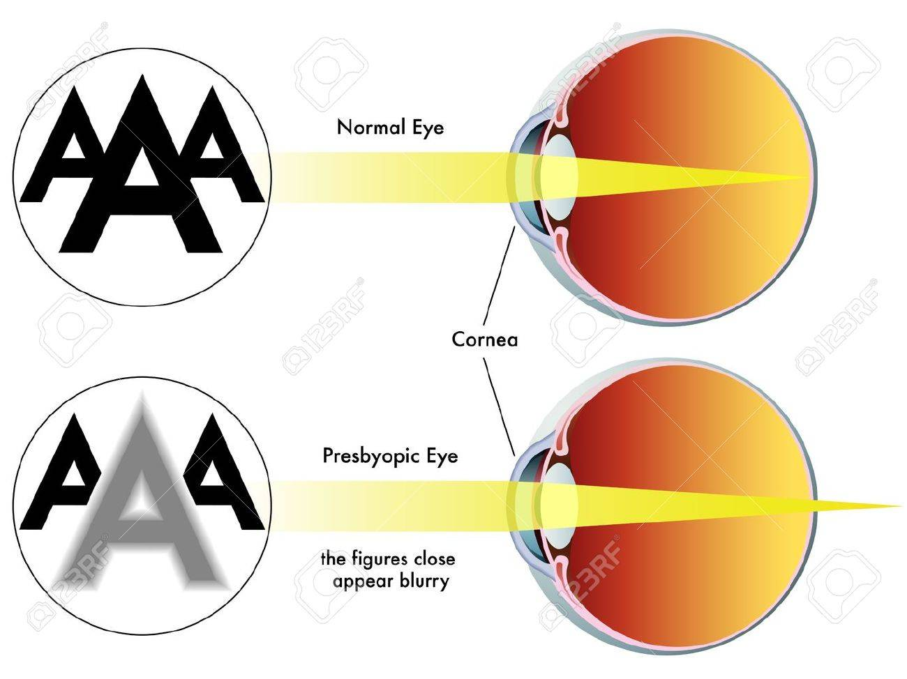 presbyopia Stock Vector - 15934073