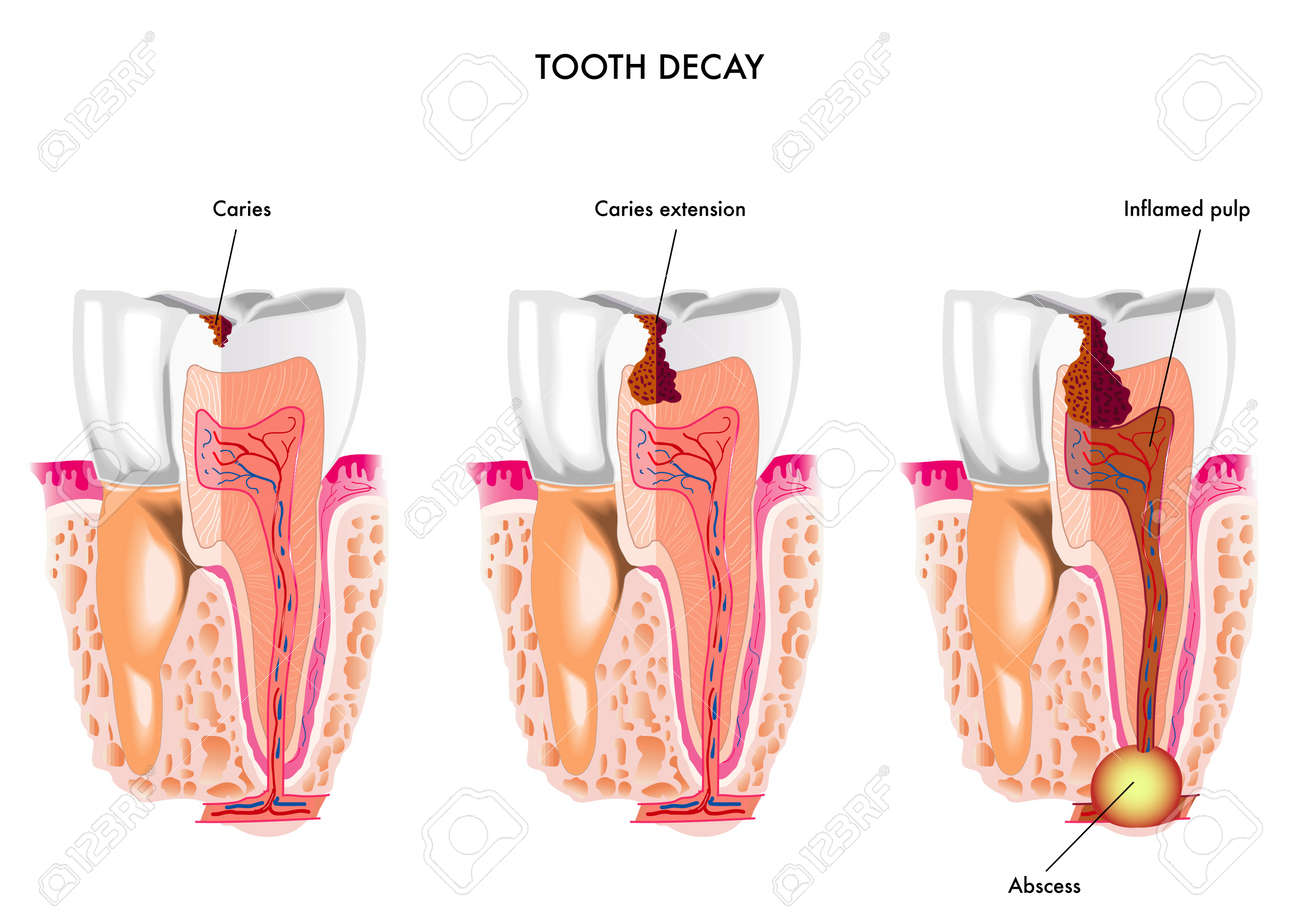 Tooth Decay Royalty Free Cliparts, Vectors, And Stock Illustration ...