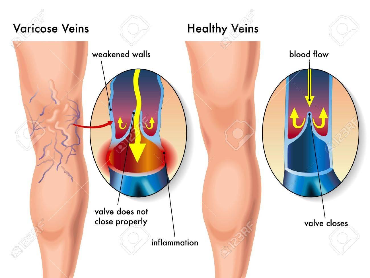 varicose veins - 16456222