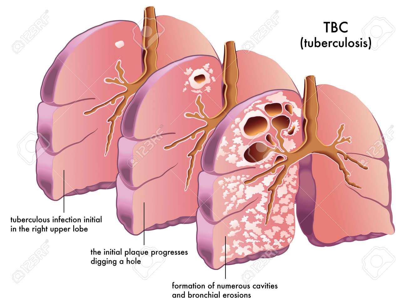 tuberculosis Stock Vector - 16755651