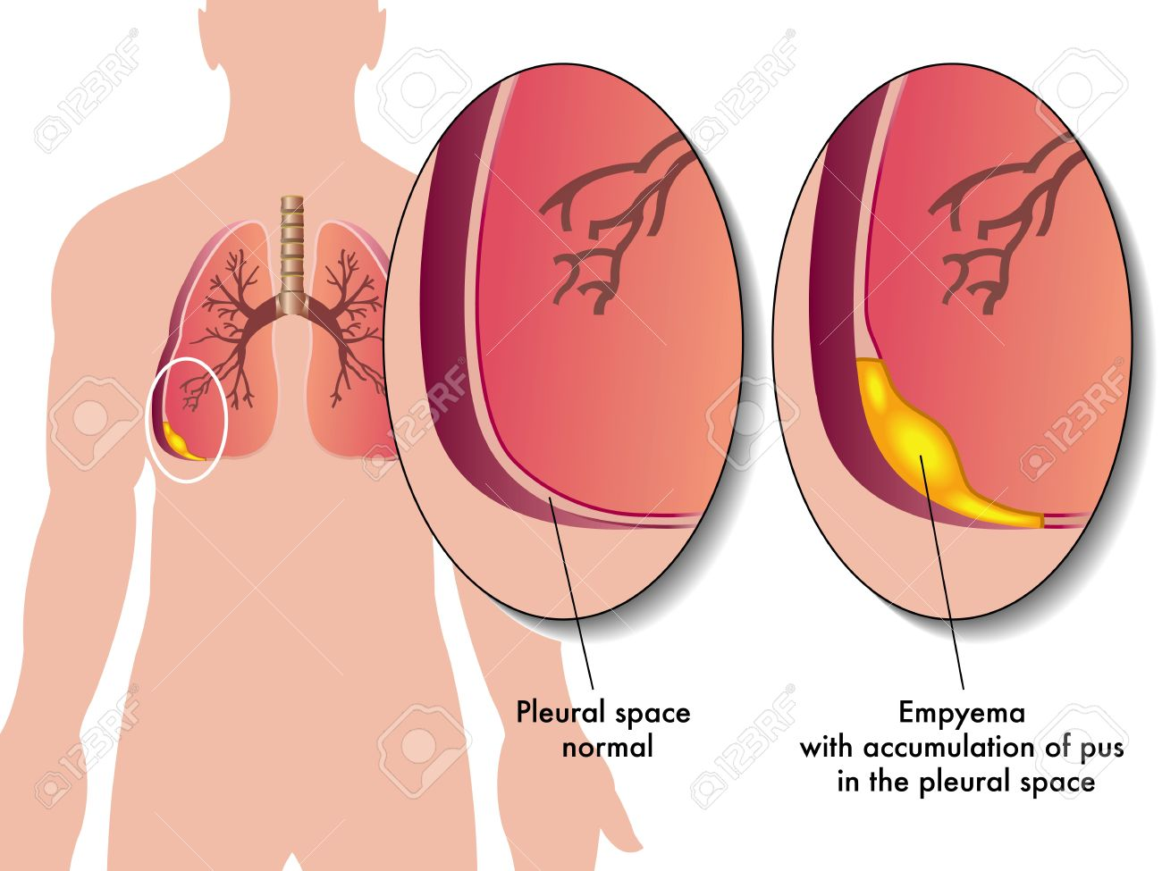 Pleural Empyema Royalty Free Cliparts, Vectors, And Stock ...