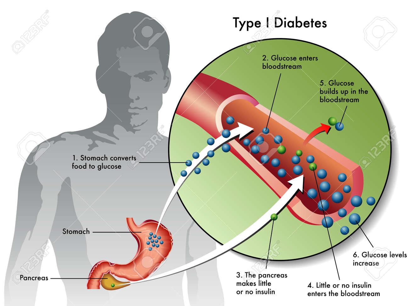 type 1 diabetes - 17727298