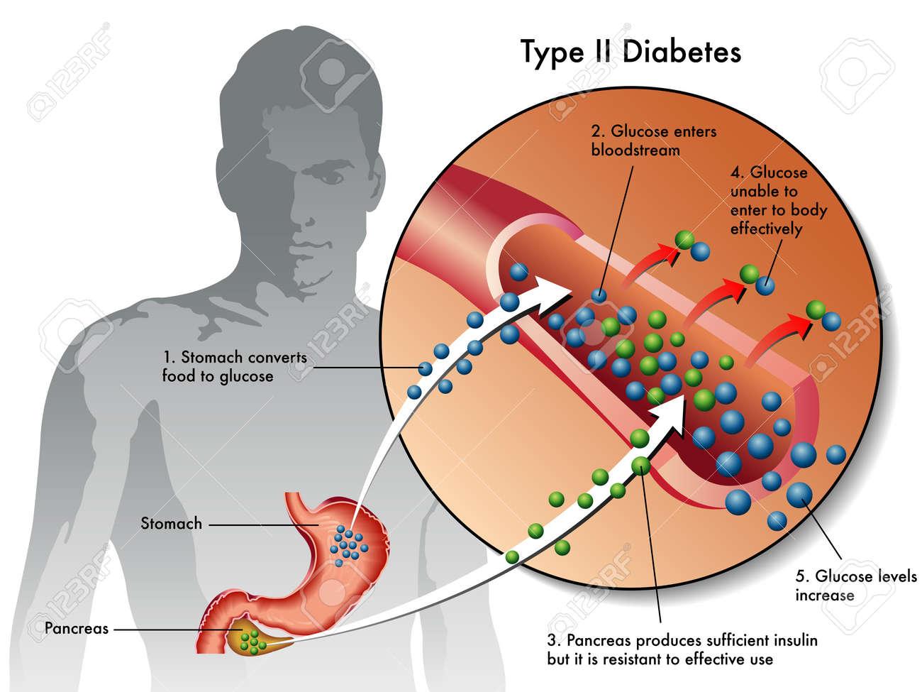 type 2 diabetes Stock Vector - 17727299