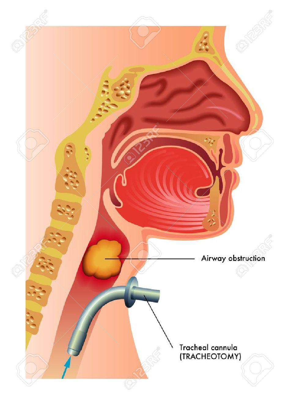 tracheotomy Stock Vector - 17727301