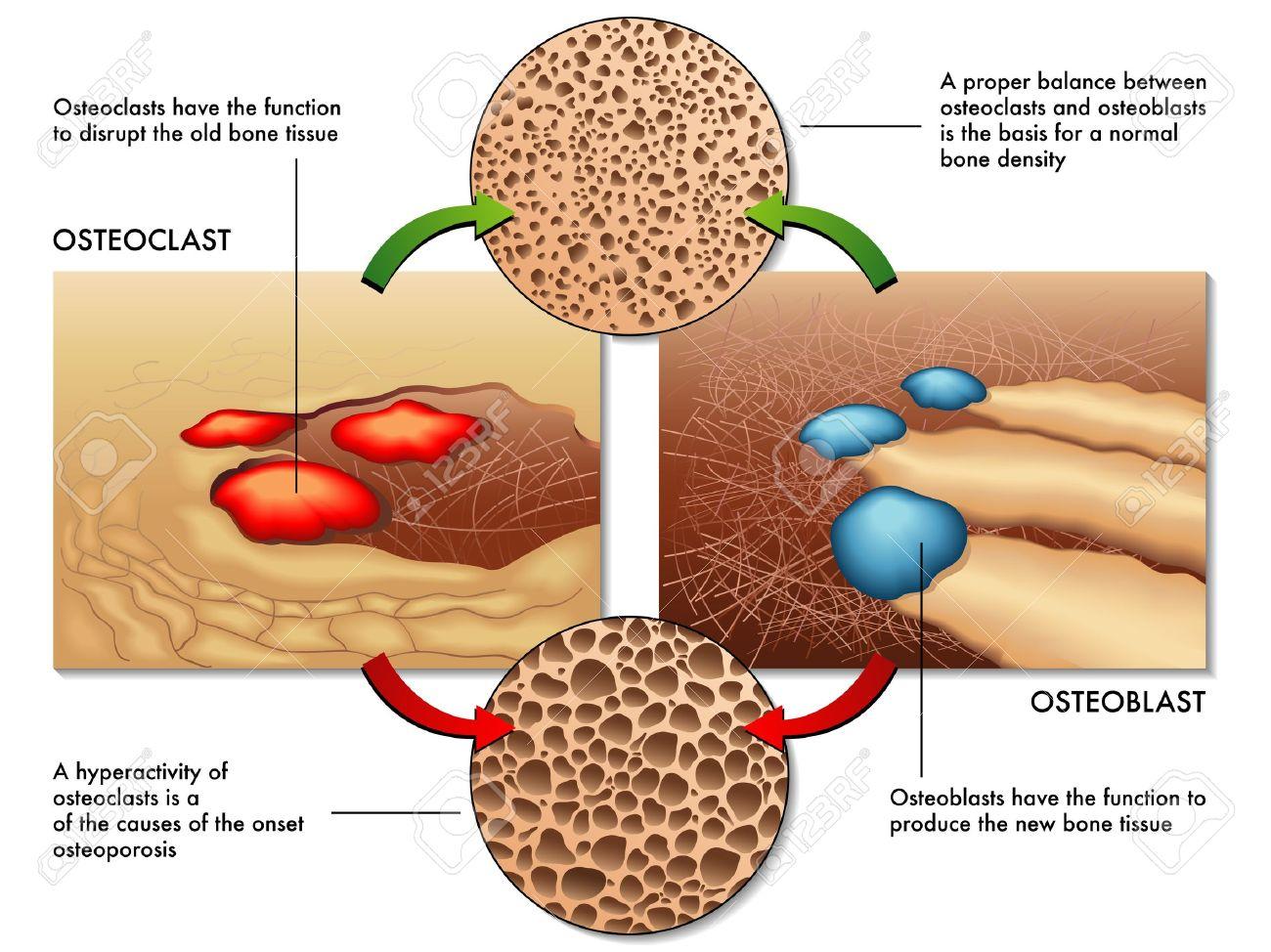 osteoblast & osteoclast - 18003391
