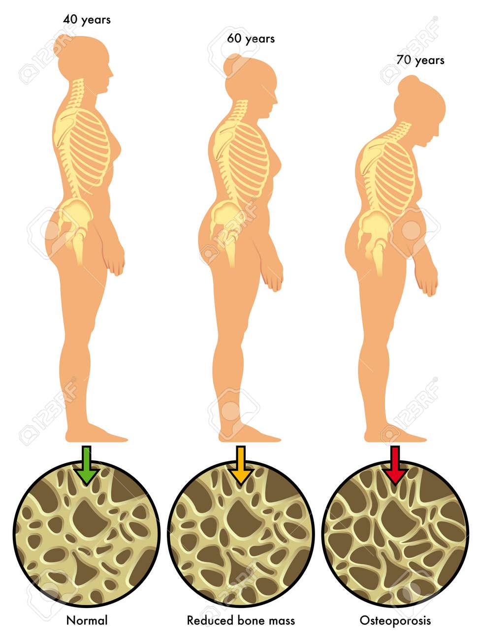 osteoporosis 3 - 18003390