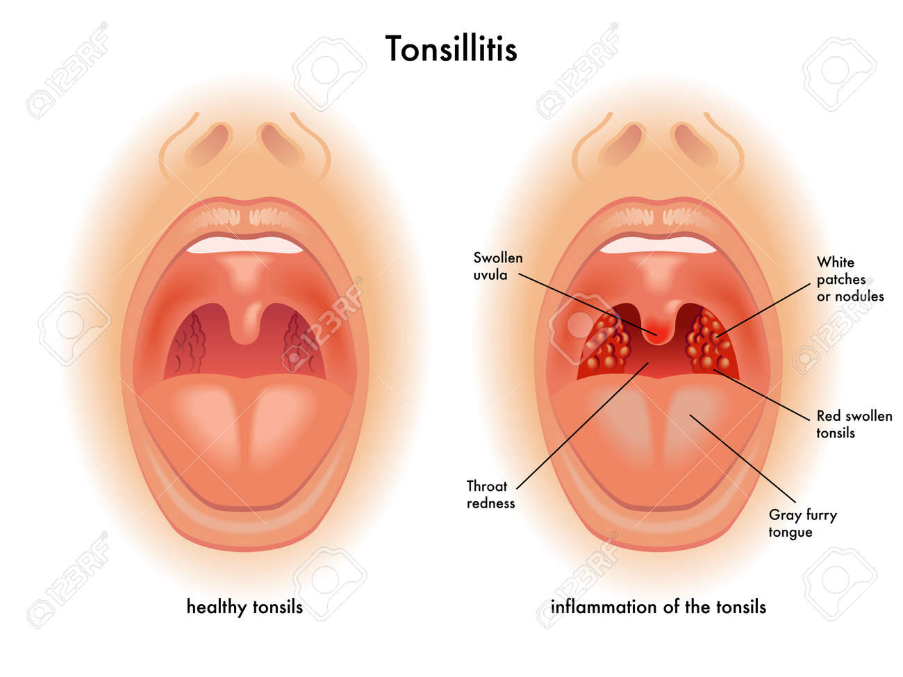 Tonsillitis Royalty Free Cliparts Vectors And Stock Illustration