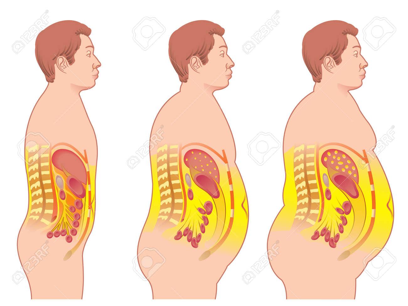 obesity Stock Vector - 20332580