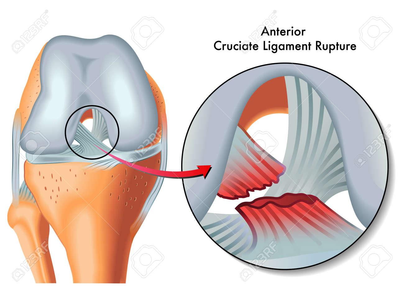 Anterior Cruciate Ligament Rupture Royalty Free Cliparts, Vectors ...