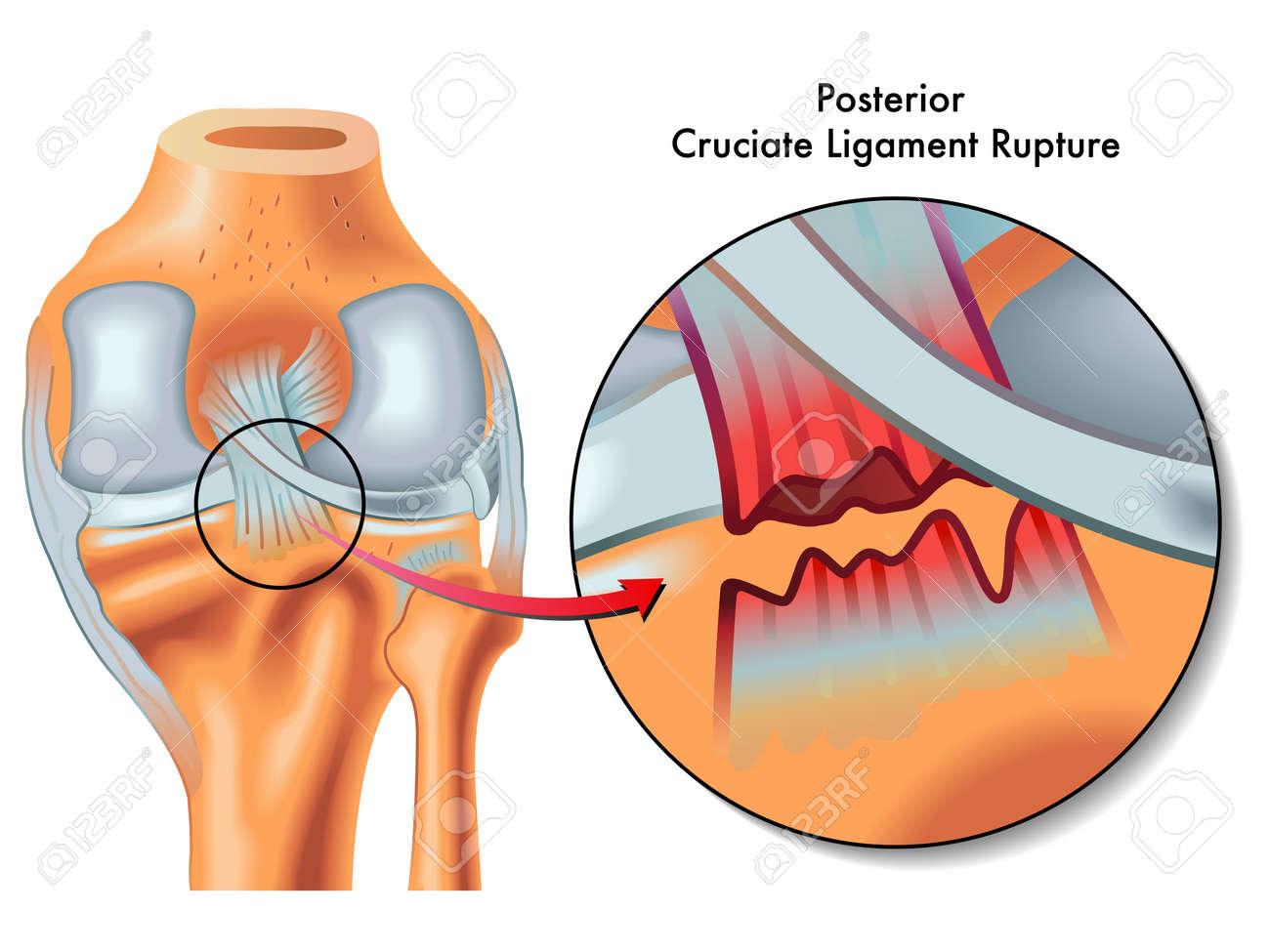 Posterior cruciate ligament rupture - 23117017