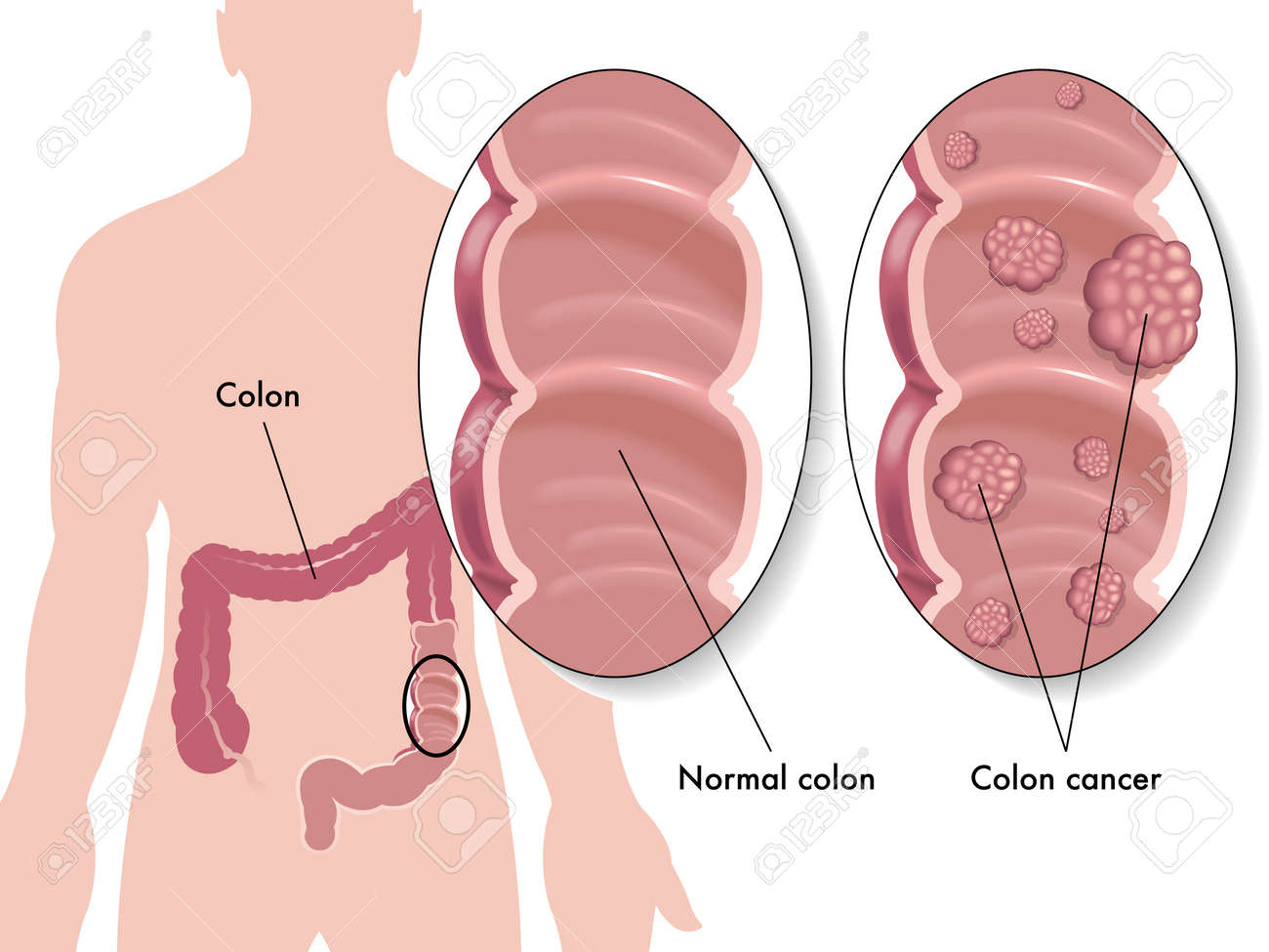 Colon Cancer Royalty Free Cliparts, Vectors, And Stock Illustration ...