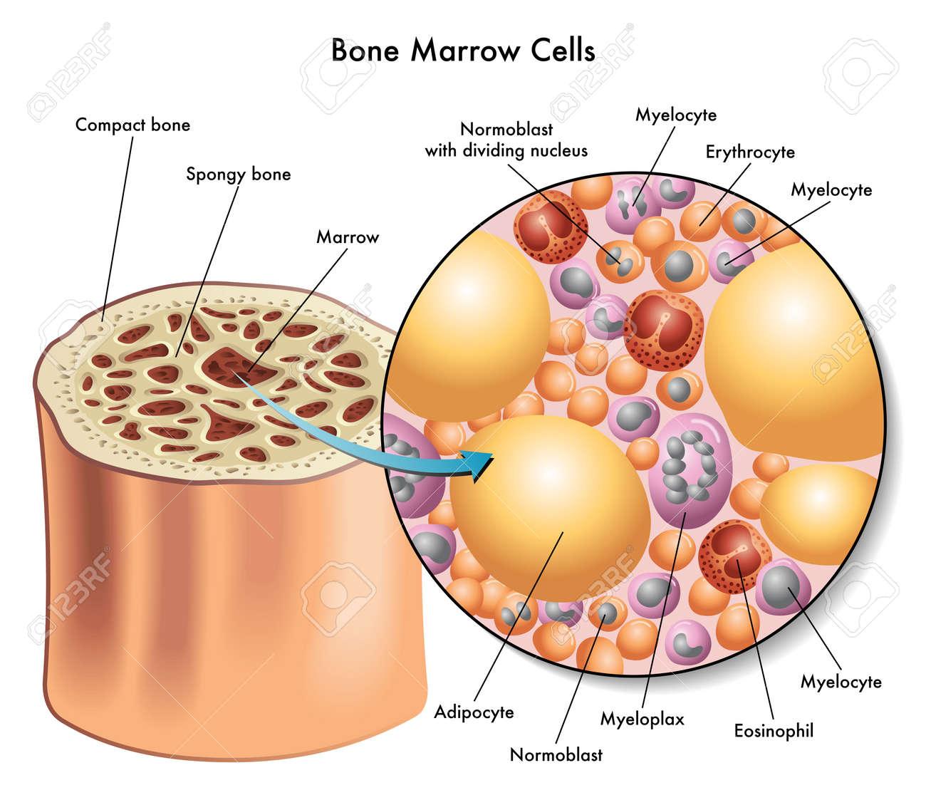 bone marrow cells - 27490936