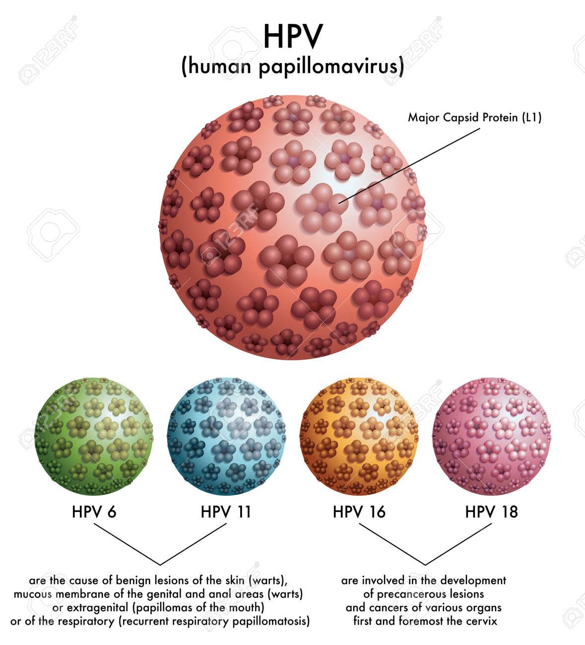 HPV Human Papillomavirus Stock Vector