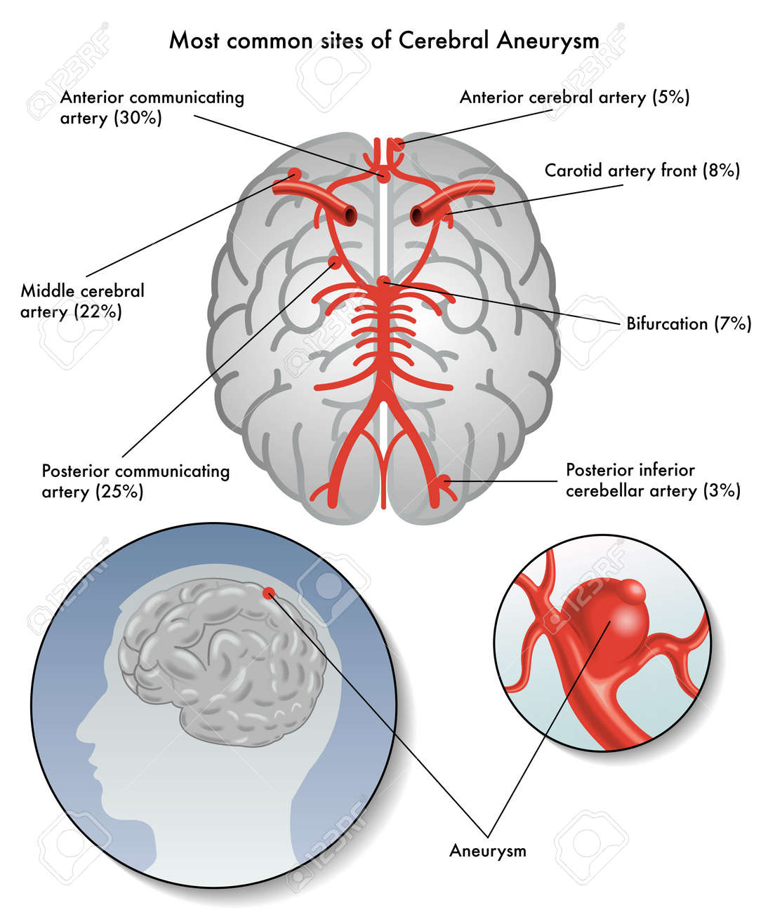 sites of cerebral aneurysm - 31401522