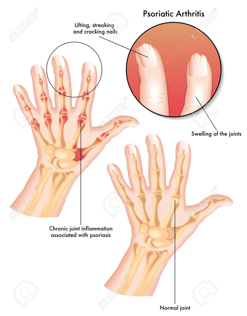arthritis psoriatica en espanol)