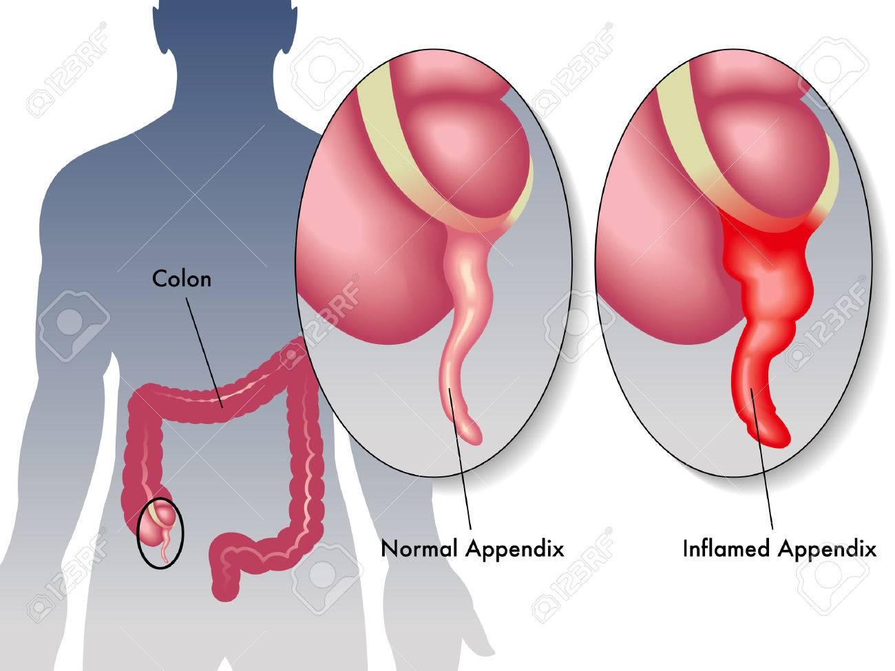 appendicitis - 32388116