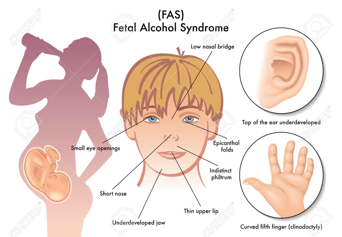 Fetal Alcohol Syndrome - 32753514