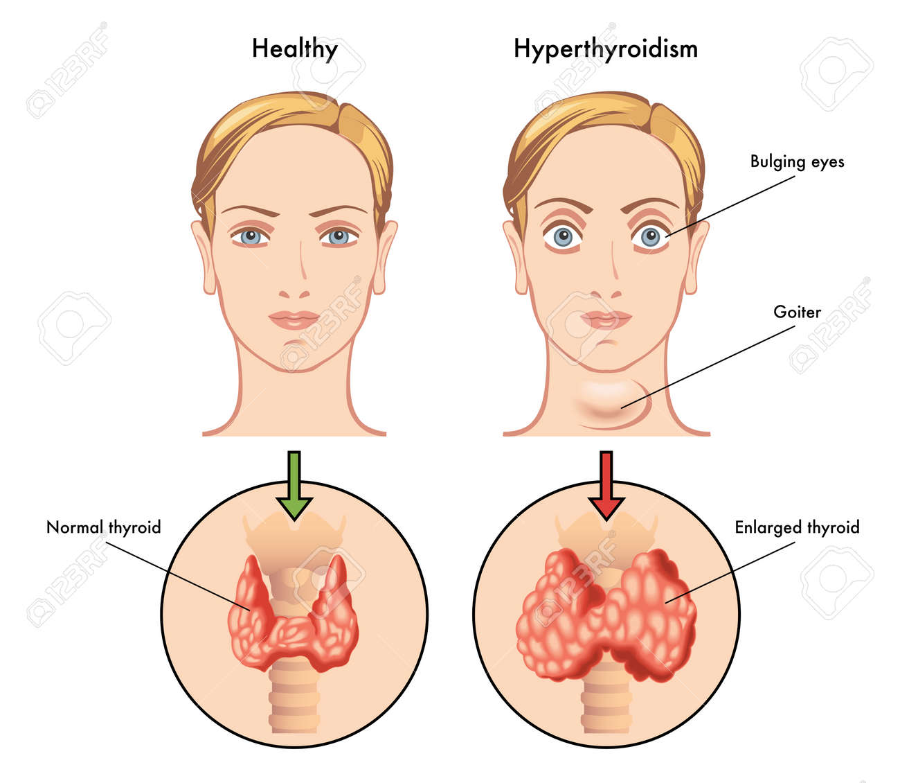 hyperthyroidism - 32875081