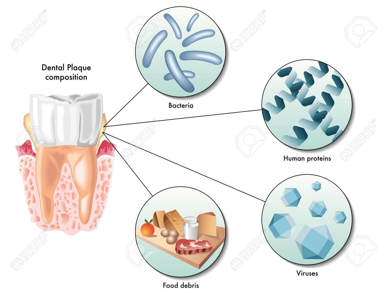 dental plaque - 35958182