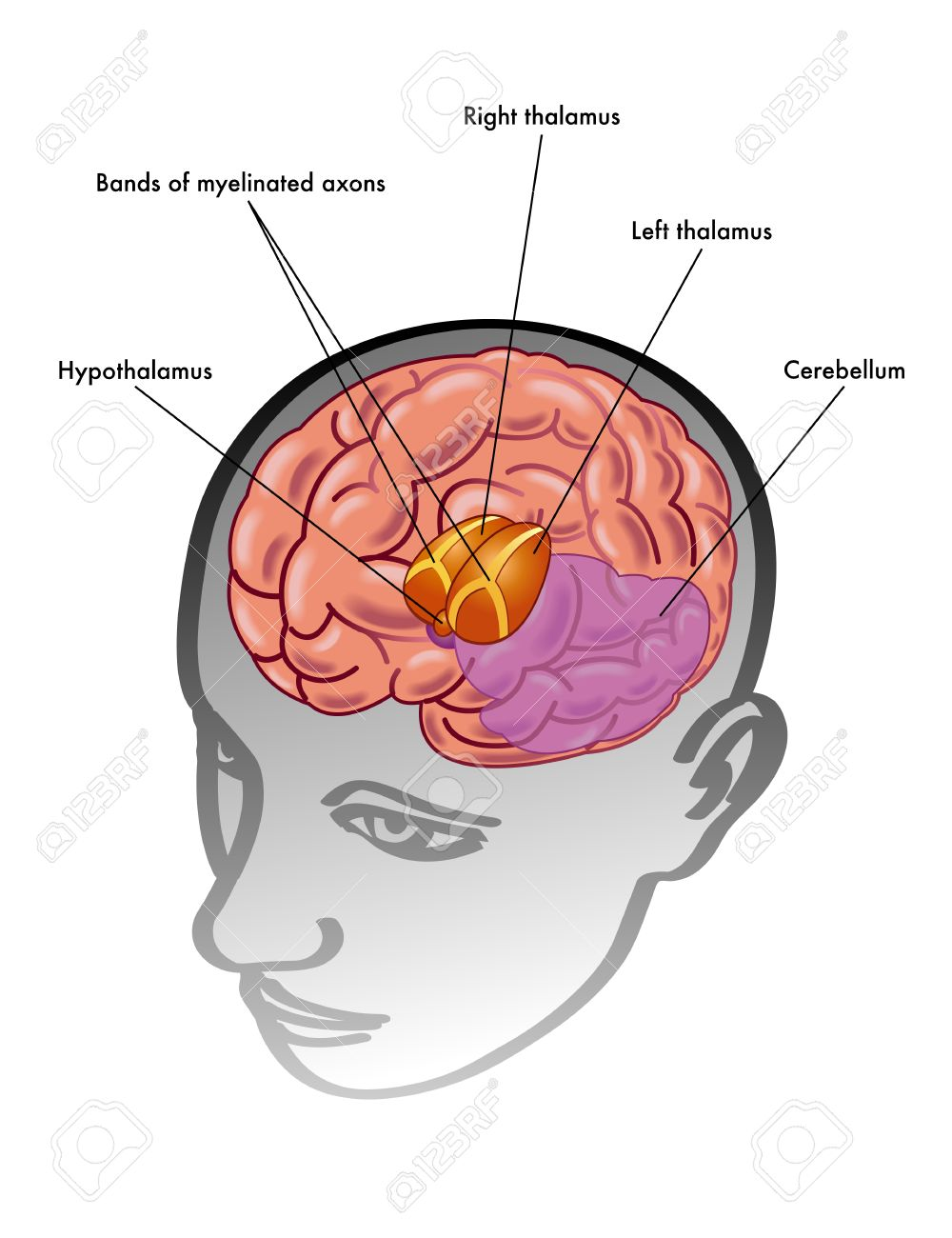 Thalamus & Hypothalamus Royalty Free Cliparts, Vectors, And Stock ...