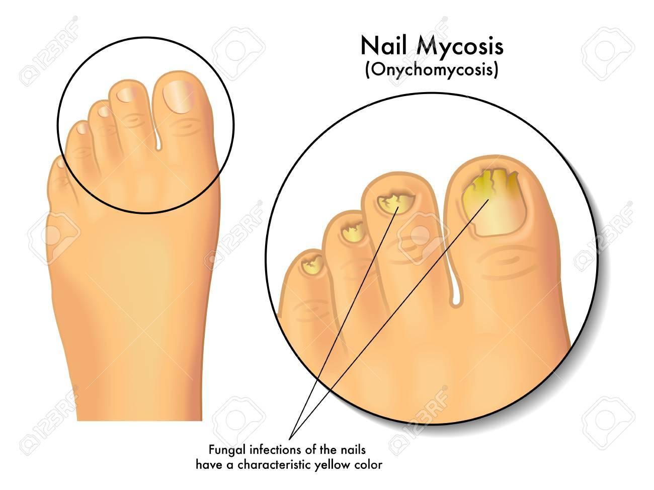 nail mycosis - 39062566