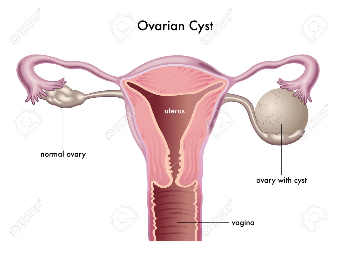 ovarian cyst - 40657966