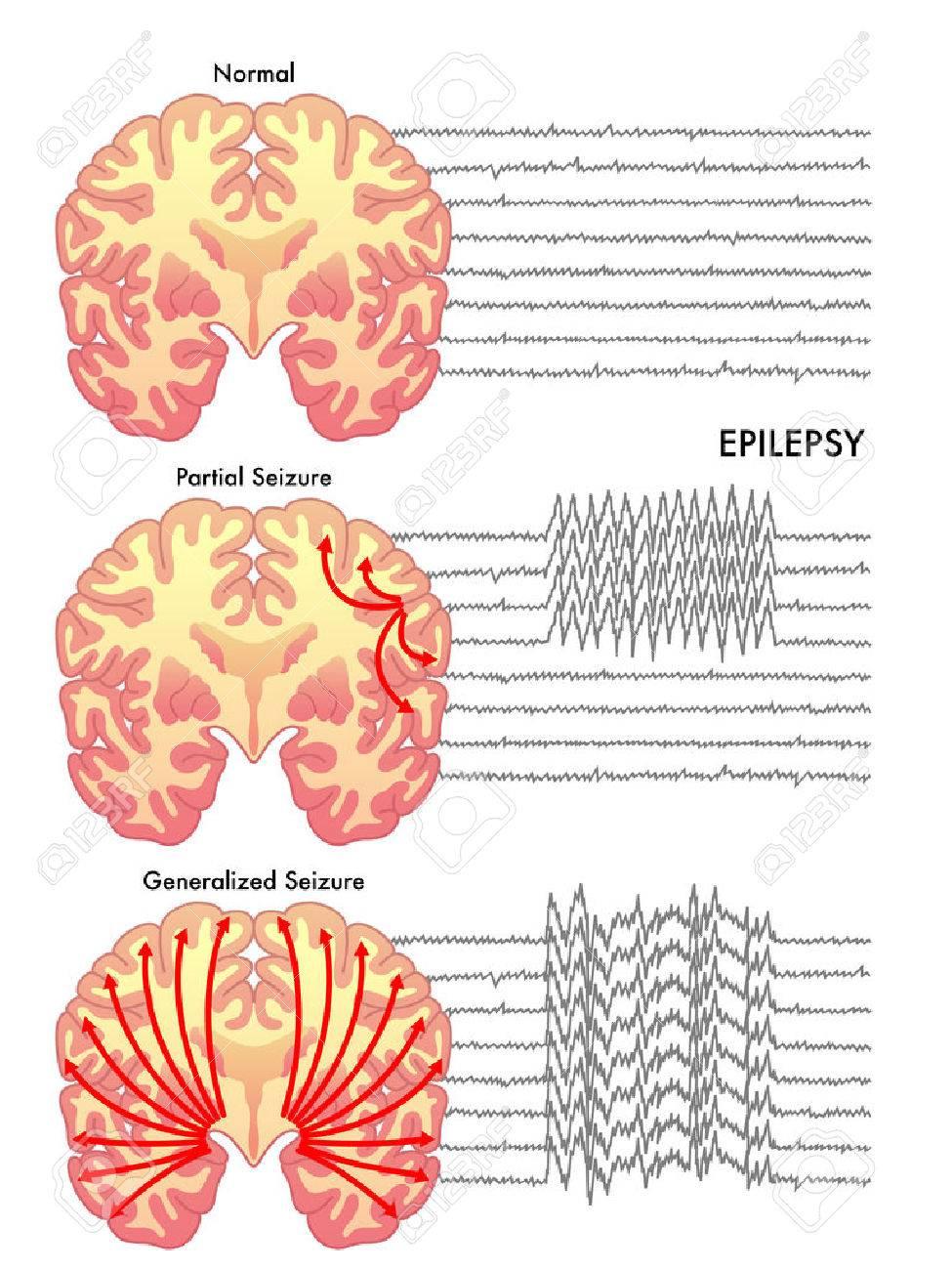 epilepsy - 40877130