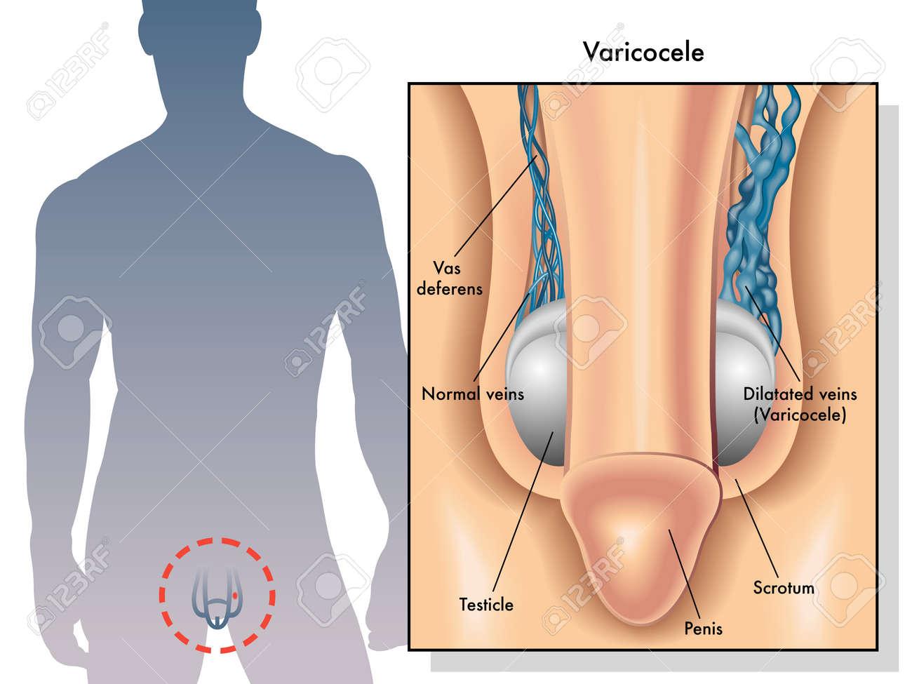 penis verdovingsspray