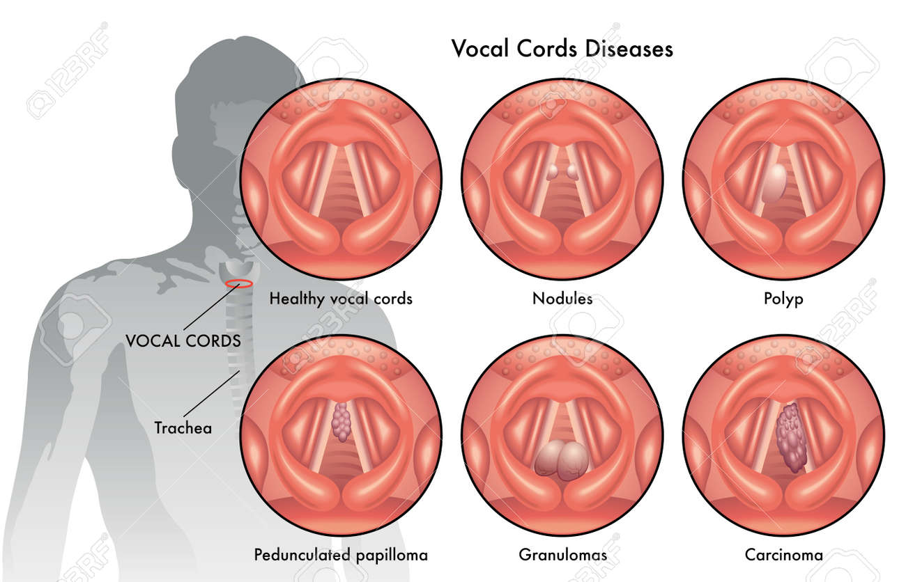vocal cord diseases - 45568447