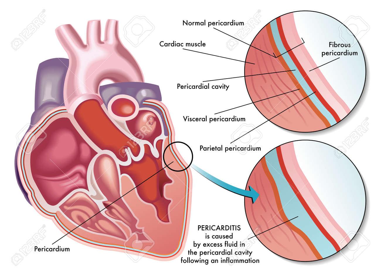 pericarditis - 45930588