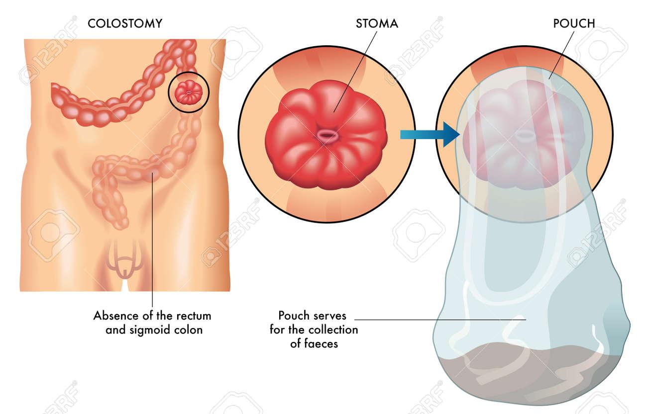 colostomy - 47398897