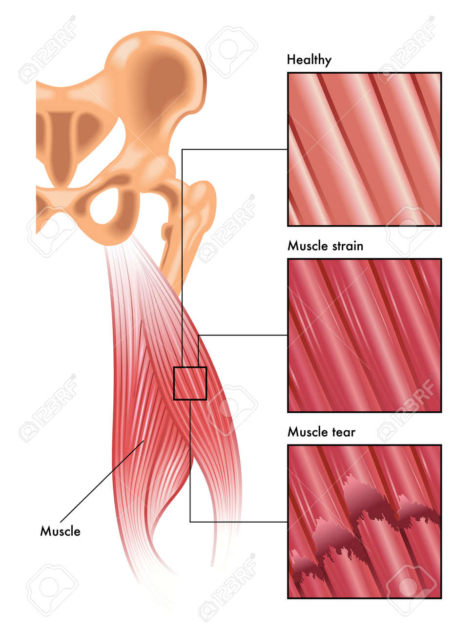 Torn Muscle Diagram Online Schematic Diagram