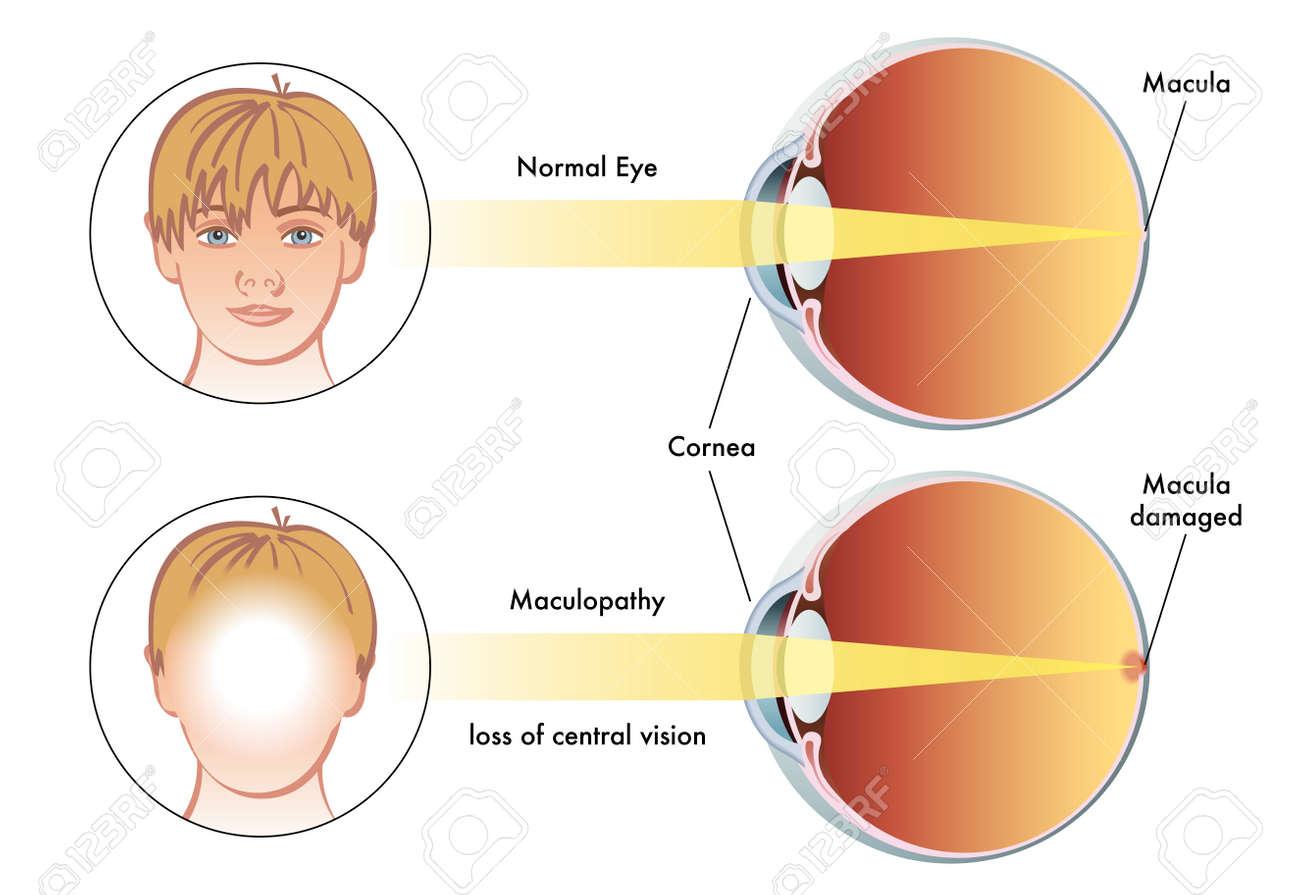 maculopathy - 51738152