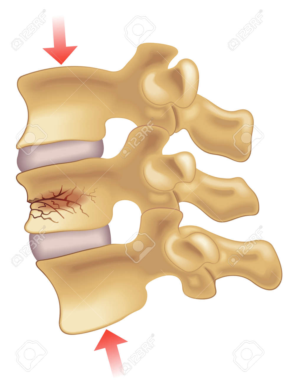 vertebral compression fracture - 57153846