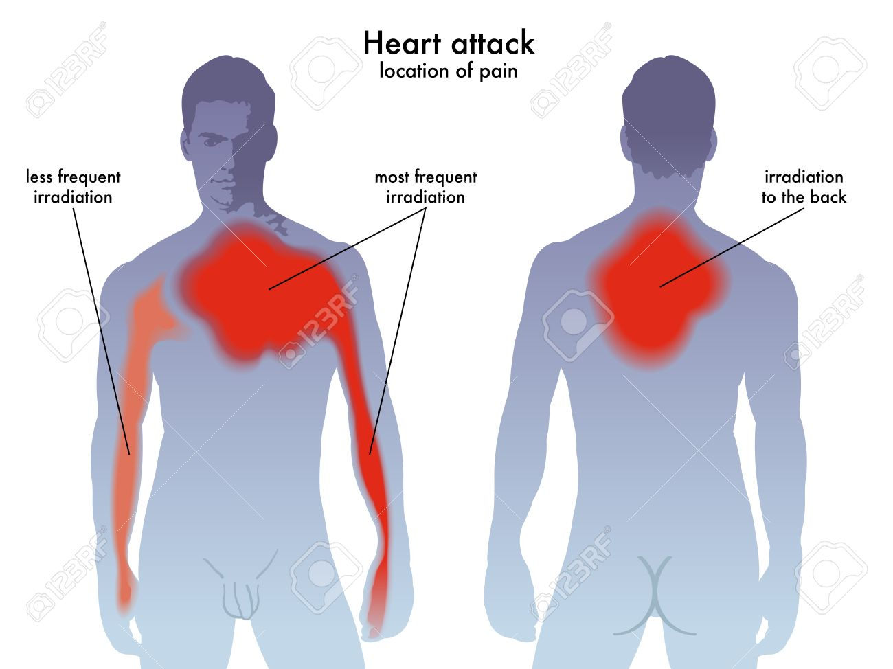 heart attack pain location royalty free cliparts, vectors, and stock Muscle Diagram Human Heart heart attack pain location stock vector 57714452