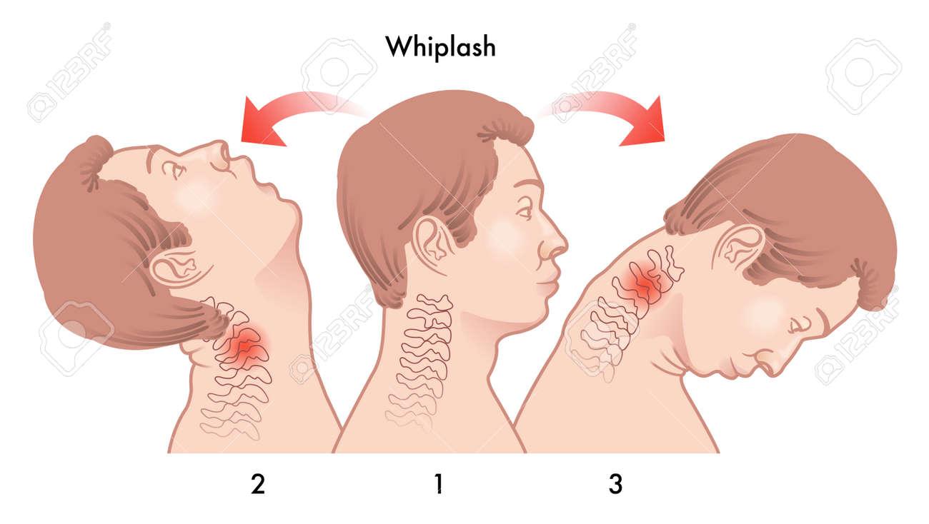 whiplash injury - 58188286
