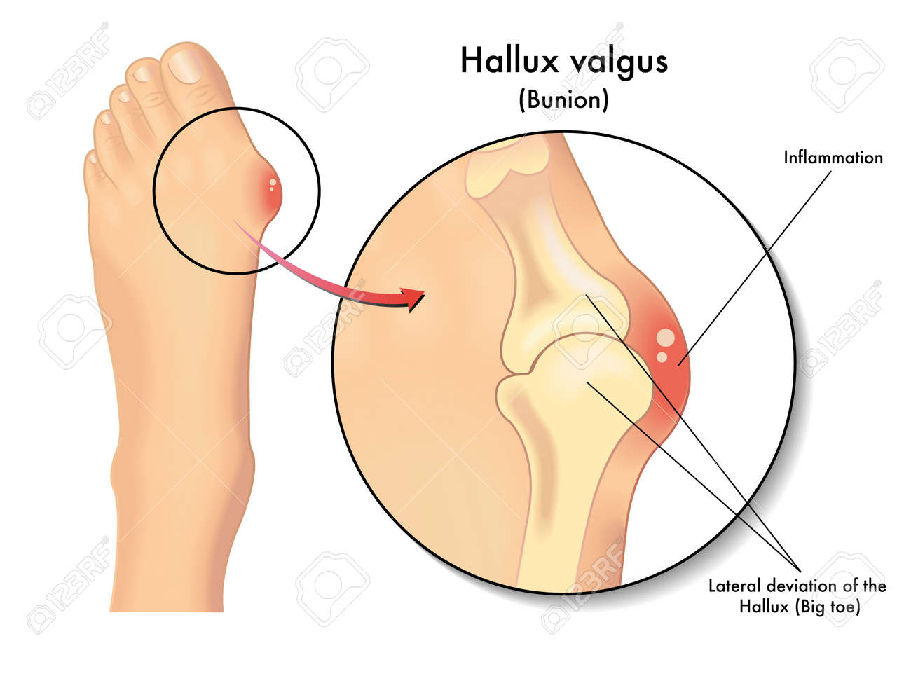 Hallux Valgus Royalty Free Cliparts, Vectors, And Stock Illustration ...