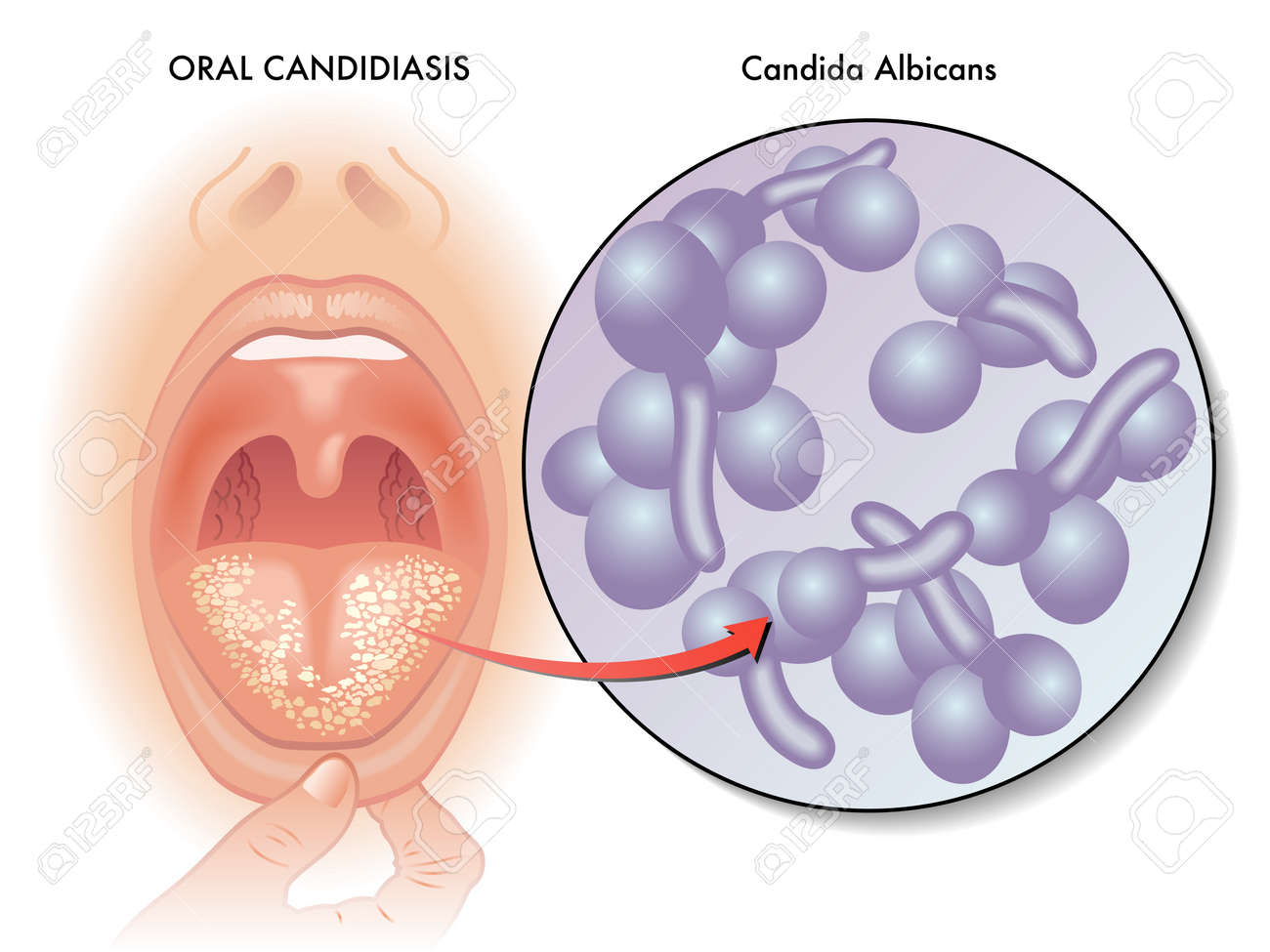 symptoms of oral candidiasis - 88223181
