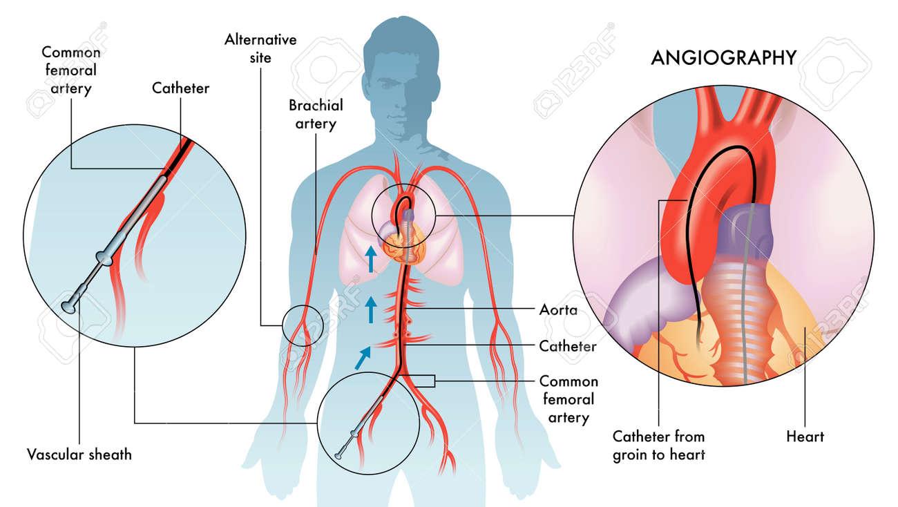 Labeling illustration of coronary angiography on white, white background. - 118489833