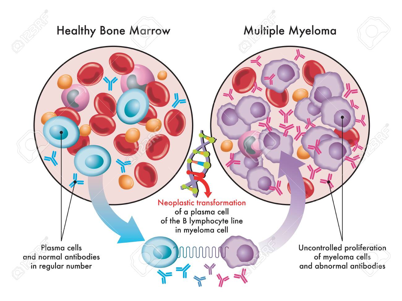 Medical illustration shows the transformation of plasma cells in healthy bone marrow into myeloma cells in multiple myeloma, due to DNA damage. - 156347099