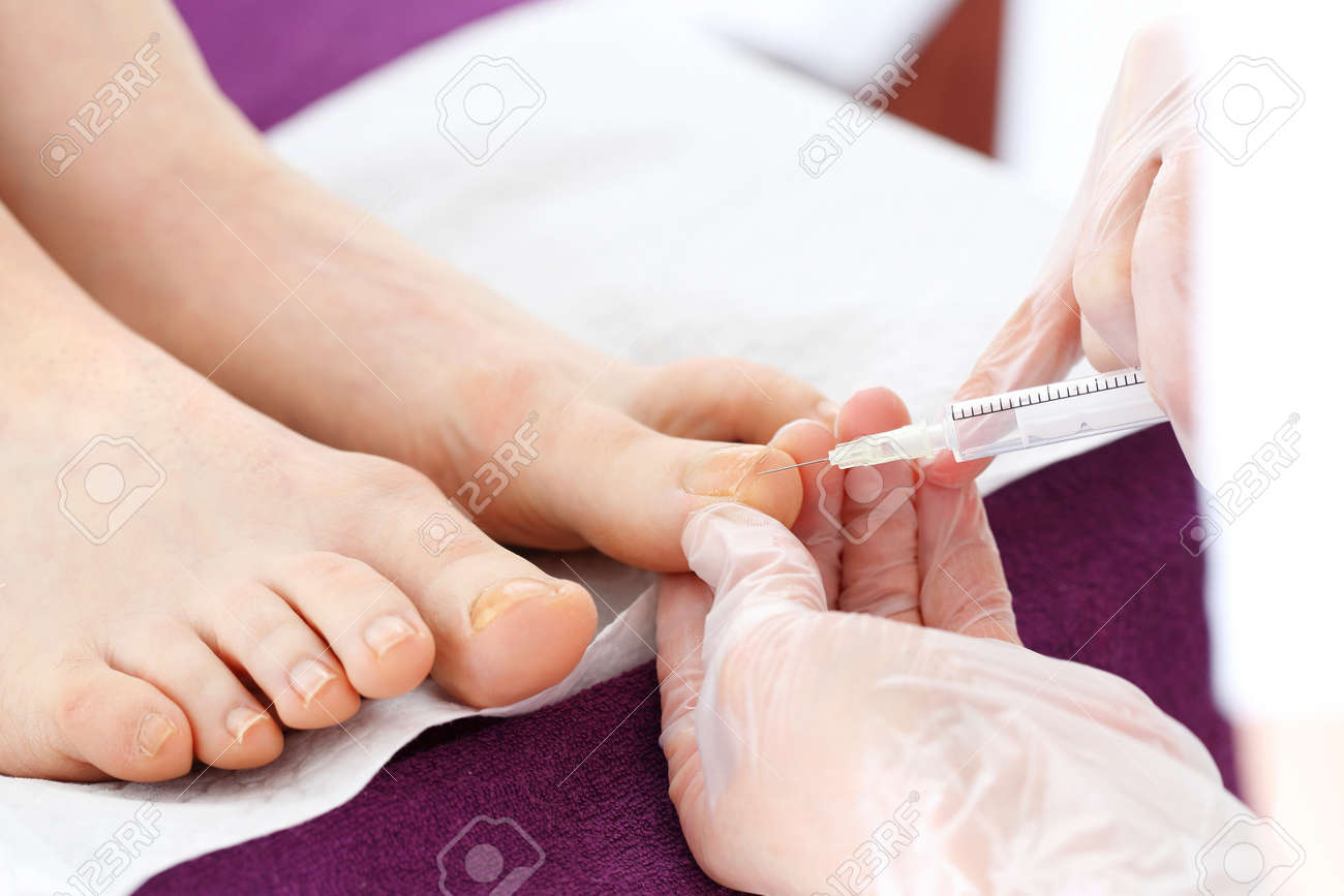 Surgical Removal Of Ingrown Nail. The Doctor Injects An Analgesic ...