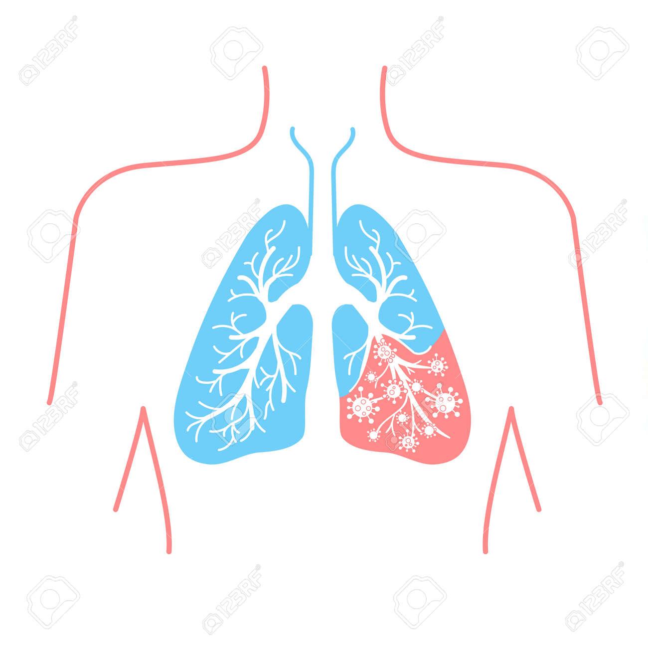 Gemütlich Asthma Anatomy And Physiology Bilder - Anatomie Ideen ...