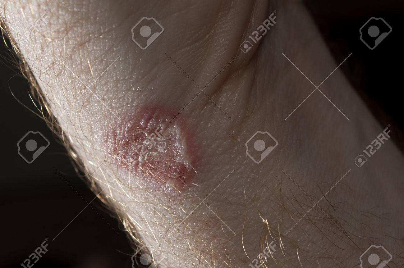 症 真菌 感染