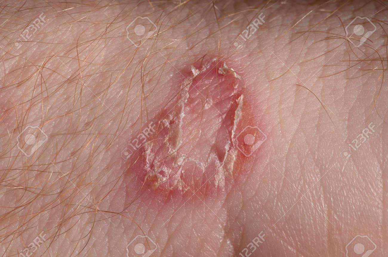 De micosis piel fotos en la