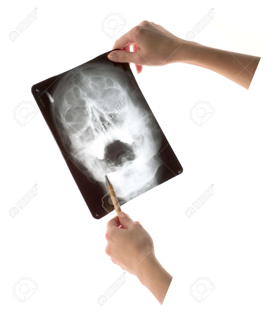 Inspecting x-ray shot Stock Photo - 632366