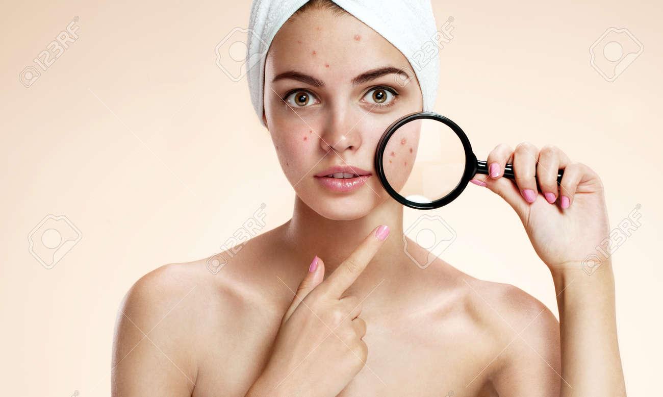 Problem skin 76